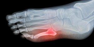 broken toe x-ray image foot pain article series