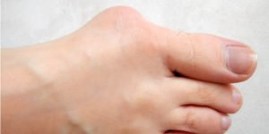 bunions causes and natural treatments article